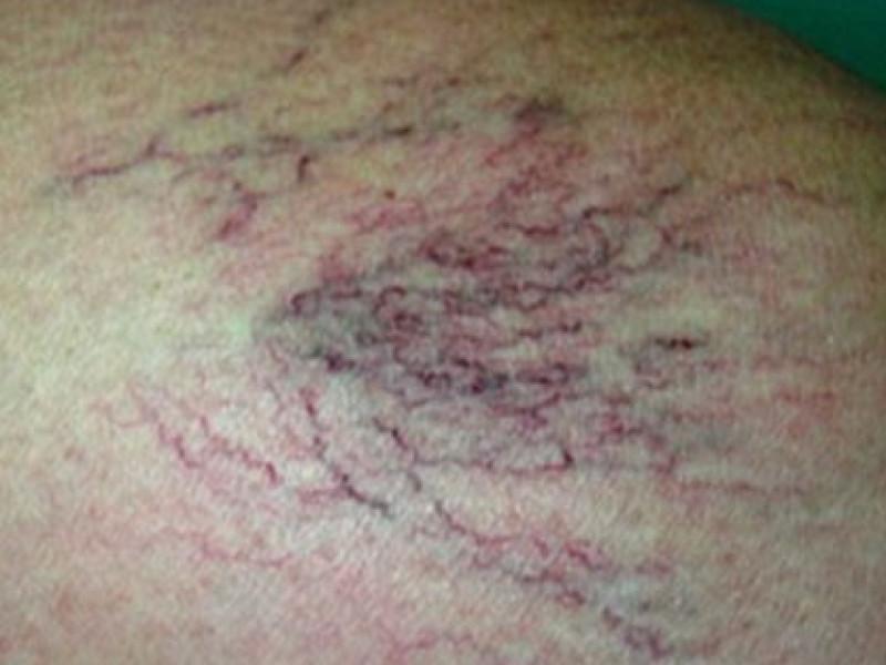 Esempio di capillari (Teleangectasie)