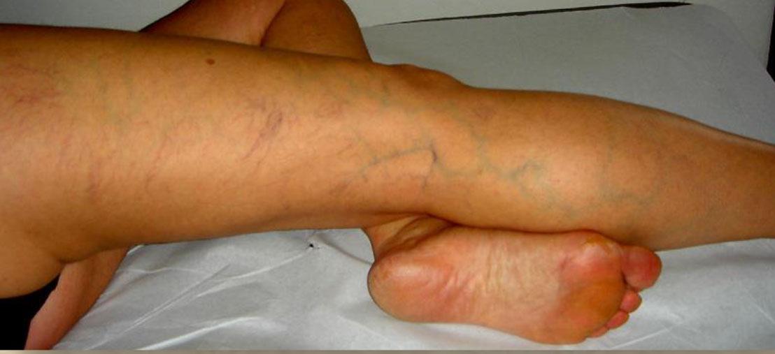 La raccomandazione dopo operazione su varicosity di vene
