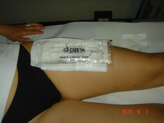 Girudoterapiya a varicosity in gravidanza