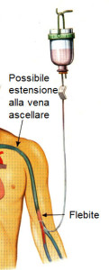 I thrombophlebitis di vene superficiali abbassano estremità
