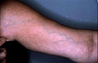Trombosi di vene profonde di piccoli sintomi di pelvi