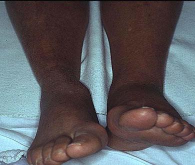 Varicosity dei sintomi di estremità più bassi e