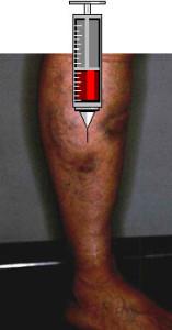 Il varicosity una vena brucia caldo