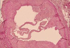 Ricevimento del phlebologist in Togliatti