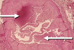 Asterischi vascolari su una ragione di fotografia torace