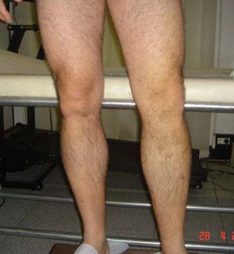 Come restaurare vene dopo thrombophlebitis