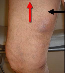 Il cuscino per gambe a varicosity per comprare