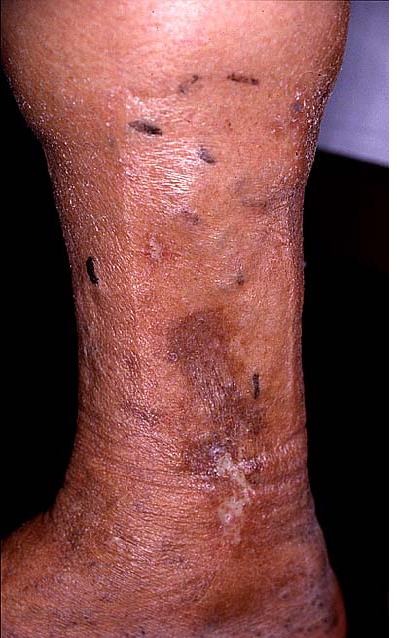 Gravidanza a varicosity delle estremità più basse